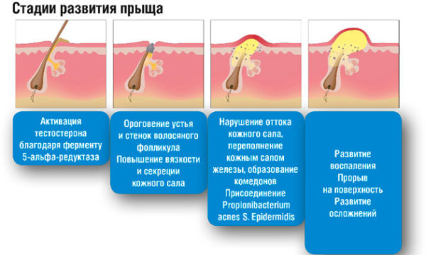 Стадии развития акне