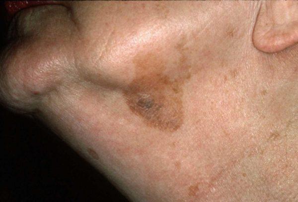 Себорейный кератоз