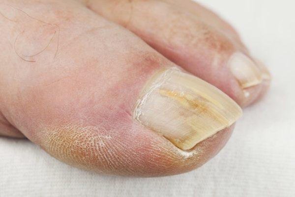Грибок ногтей и стопы