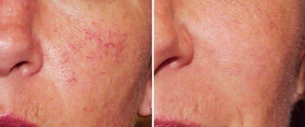 Лазерное удаление купероза: до и после
