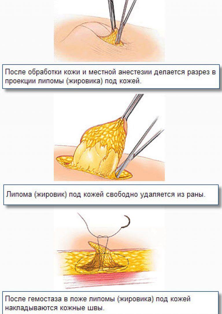 Удаление липомы