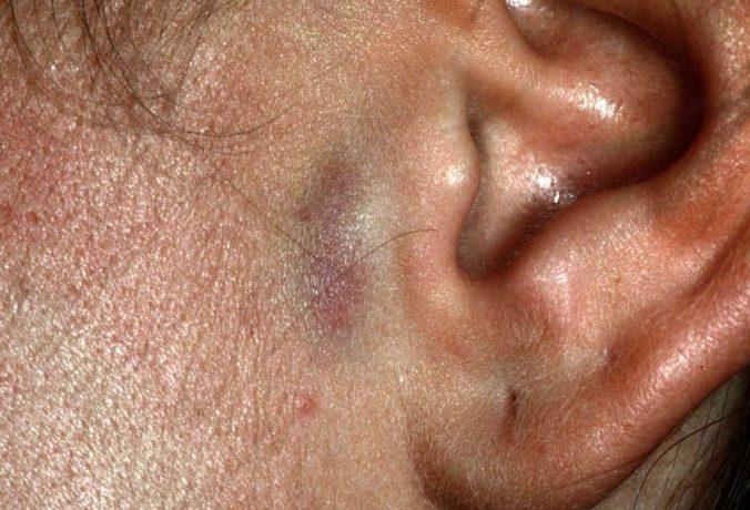 Акне на ухе