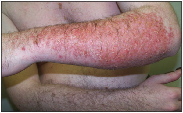 Аллергический дерматит: симптомы у взрослых
