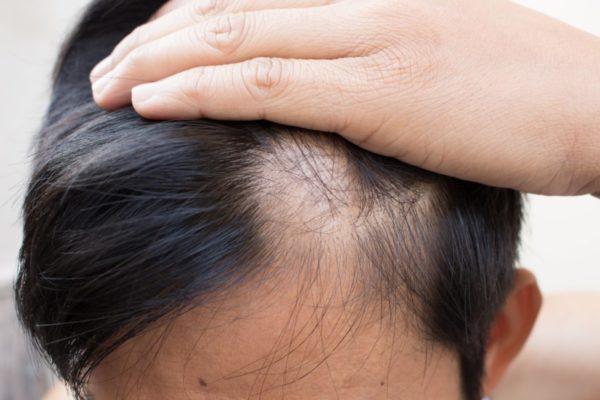 Потеря волос