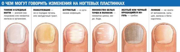 Изменение ногтей на руках причины