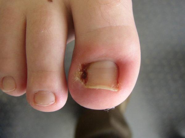 Вросший ноготь на пальце ноги
