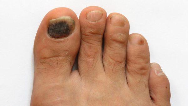 Синие пятна под ногтями на ногах 1