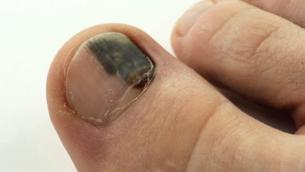Темное пятно на ногте большого пальца ноги 25