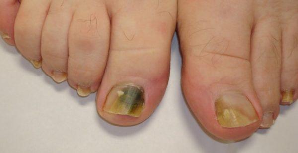 Синие пятна под ногтями на ногах 2