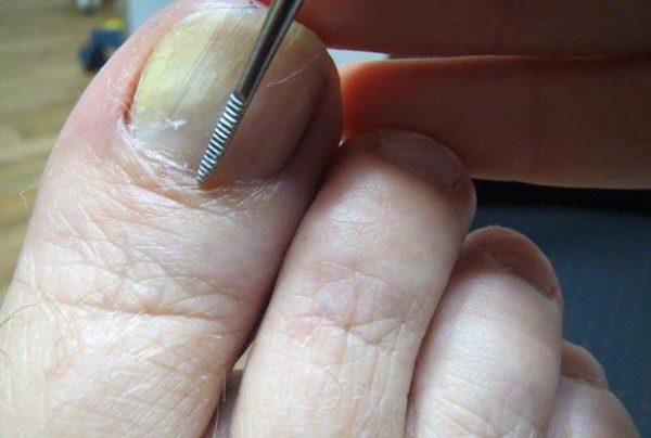 Синие пятна под ногтями на ногах 3