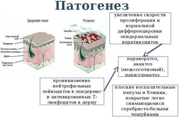 Патогенез псориаза
