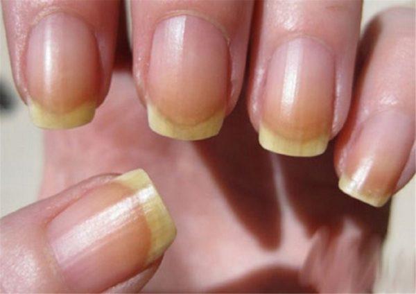 Дисхромия ногтей