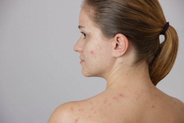 Анализы на гормоны при акне у женщин