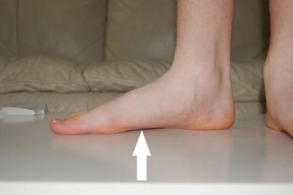 Плоскостопие - одна из причин возникновения онихомикоза