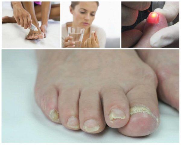 Комплексное лечение грибка ногтей