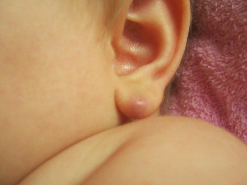 Липома на мочке уха