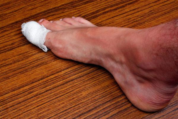 Консервативное лечение вросшего ногтя