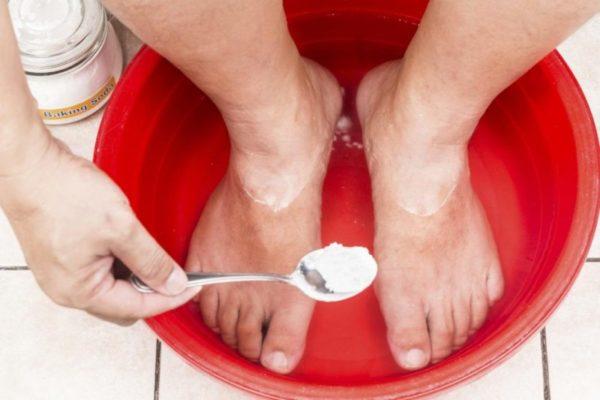 Содовые ванночки