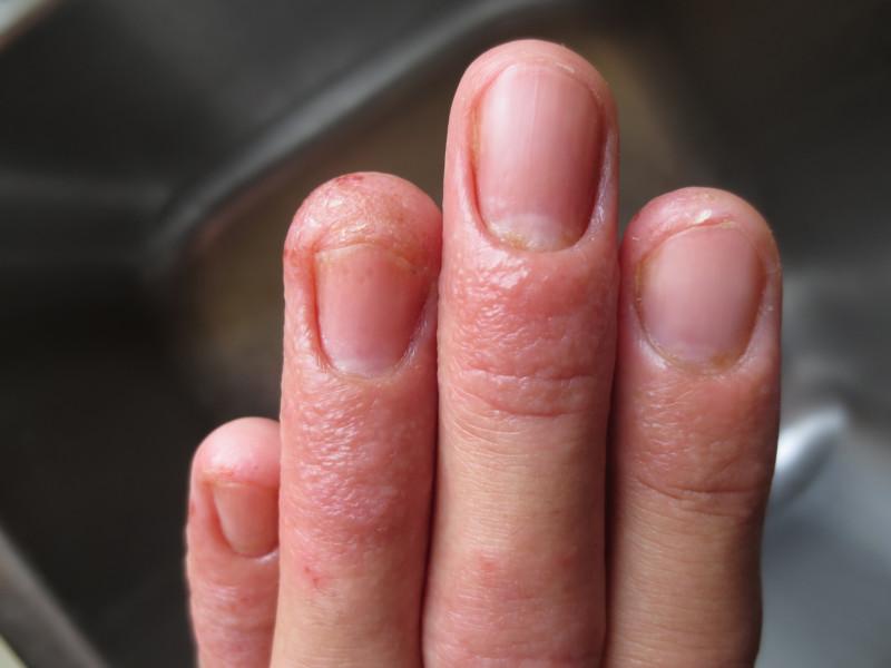 Микоз пальцев