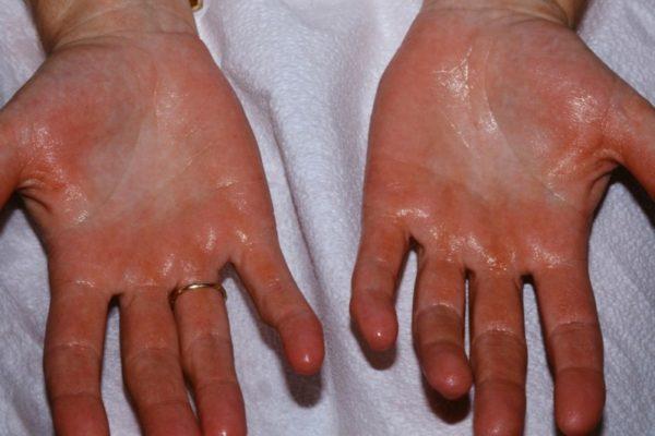 Чрезмерное потение рук провоцирует развитие грибка