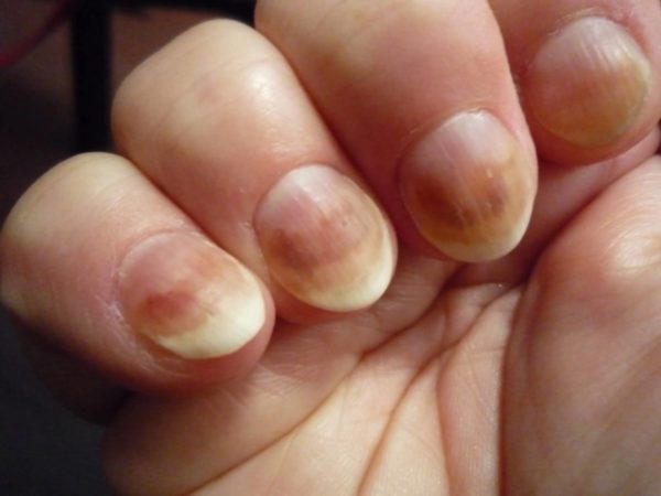 Грибок ногтей на руках