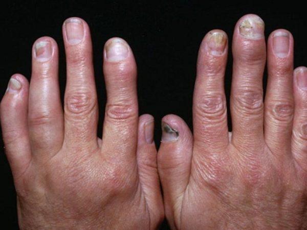 Артропатическая форма псориаза