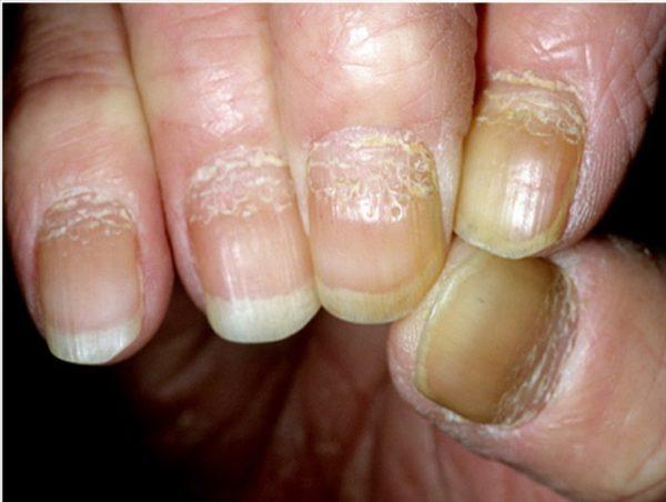 Симптомы и проявления псориаза