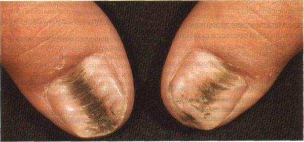 красные пятнышки на ногах у ребенка что это фото