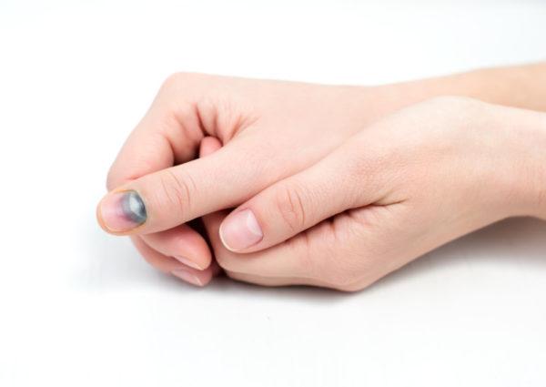 Ушиб ногтя