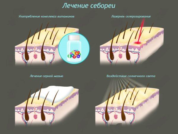 Лечение себореи
