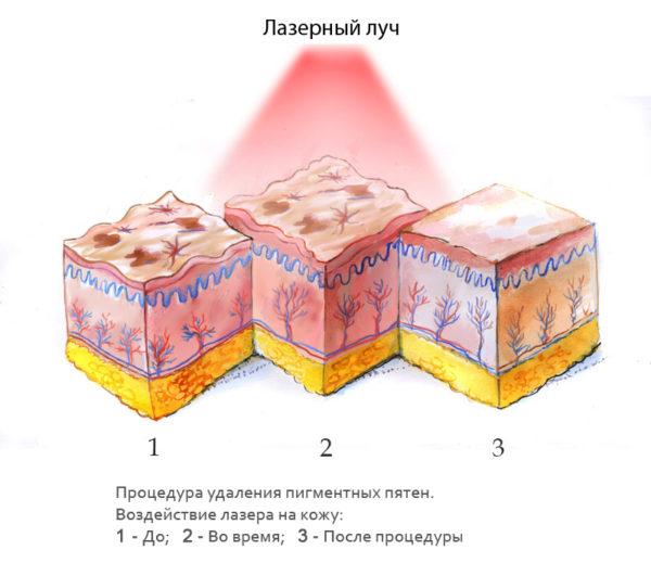 Удаление пигментных пятен лазером