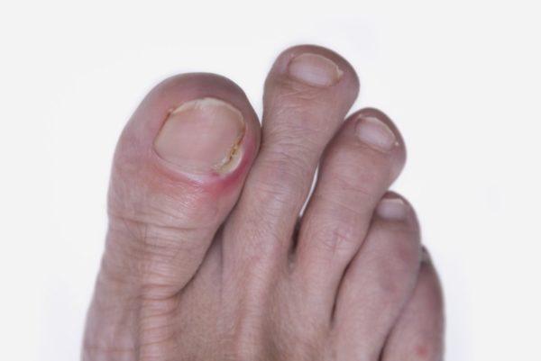 Симптомы и внешний вид вросшего ногтя