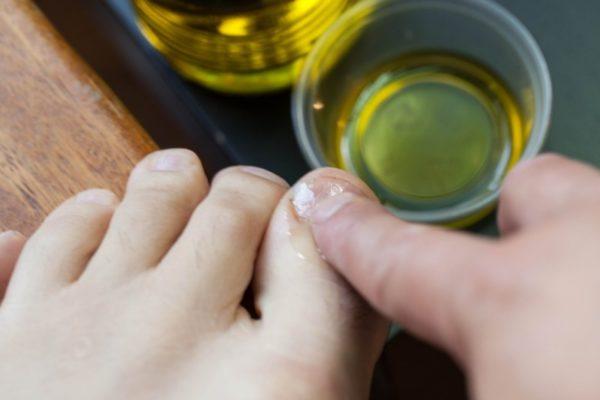 Масло чайного дерева от желтизны ногтей