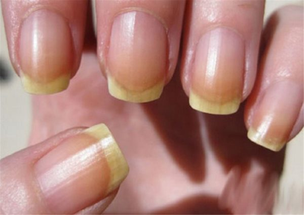 Желтые ногти