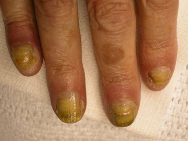 Одна из частых причин пожелтения ногтей - грибковое поражение