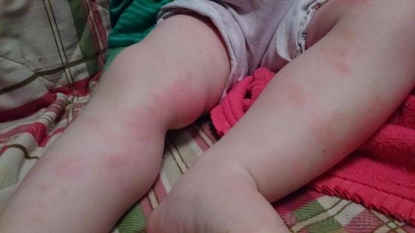 Аллергические высыпания на коже у младенца