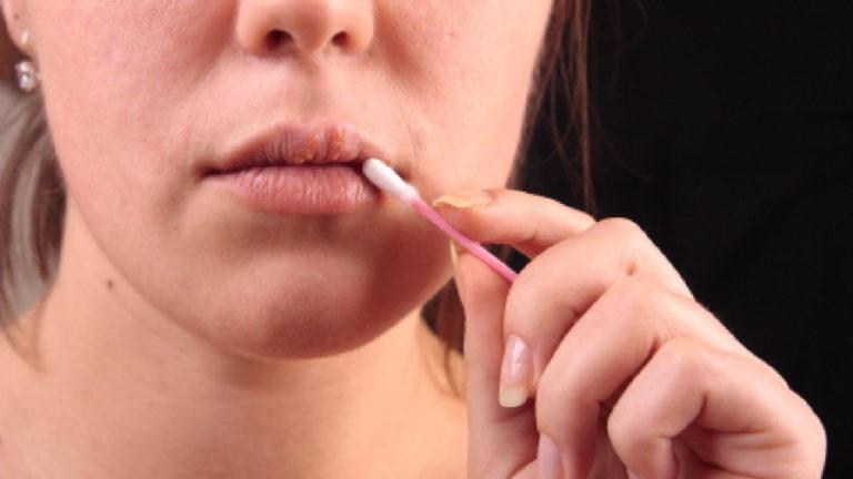 Ацикловир используется против герпесвируса