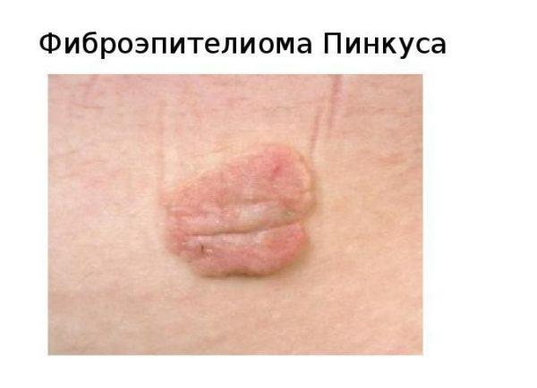Фиброэпителиома Пинкуса