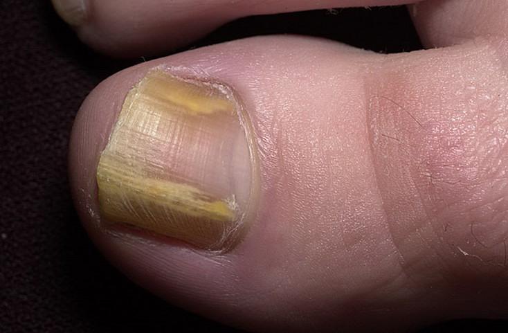 Дистальный грибок на ногтях