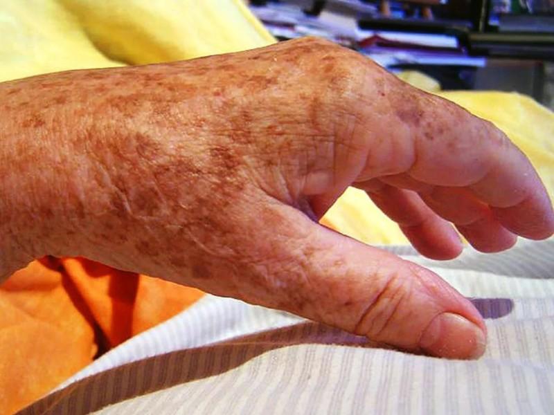 Коричневые пятна на руке