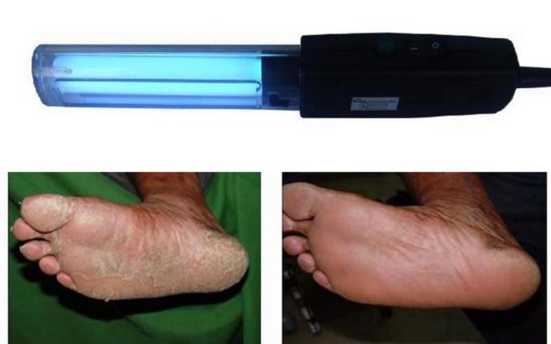 Лечение псориаза УФ-лучами