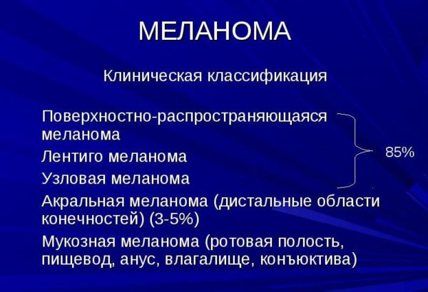 Клинические виды меланом