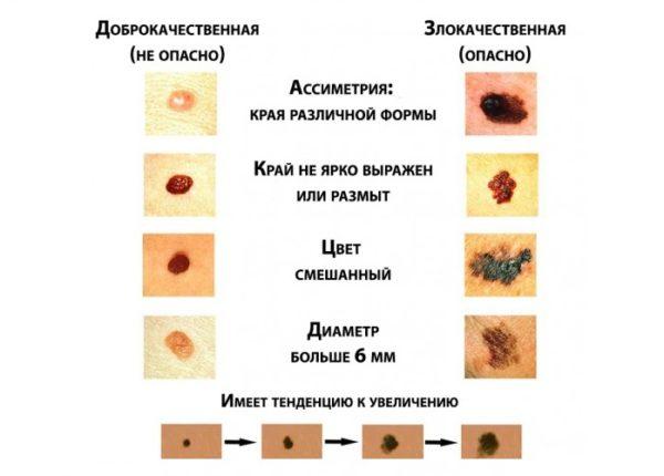 Меланома кожи