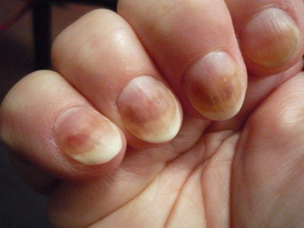 Зараженные грибком ногти