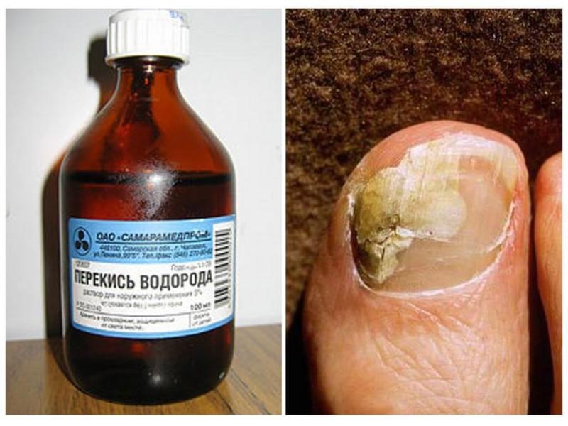 Перекись водорода от грибка ногтей