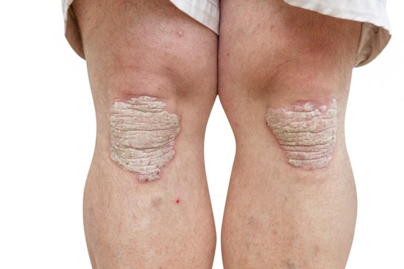 Псориаз на внешней стороне коленей