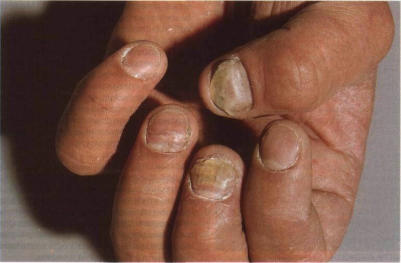 Распространение грибка может привести к полной потере ногтя
