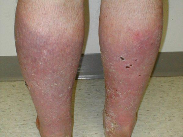 Варикозный дерматит