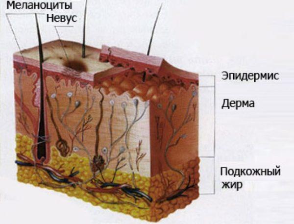 Схема невуса