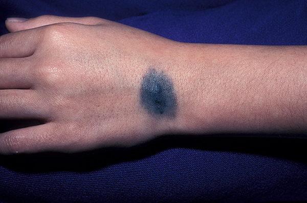Голубой невус